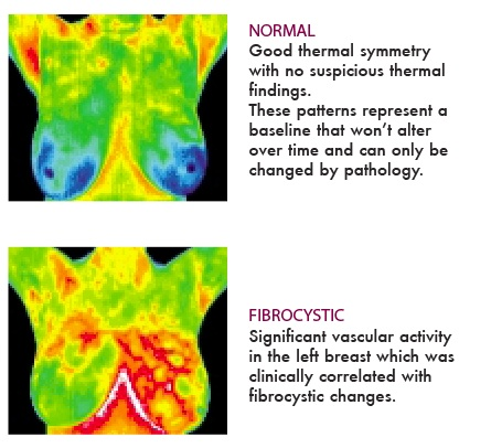 detection cancer Thermography breast