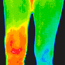 Thermography - Legs