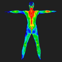 Thermography - Whole Body 250px